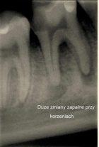 Zdjęcie zęba 3 – kanałowego przed leczeniem