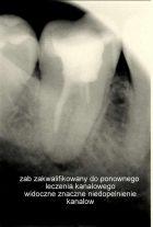 Ząb zakwalifikowany do powtórnego leczenia kanałowego, duże zmiany zapalne